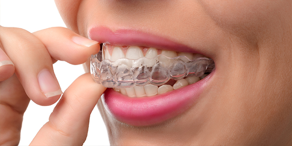 What is Invisalign? | South Yarra Orthodontics