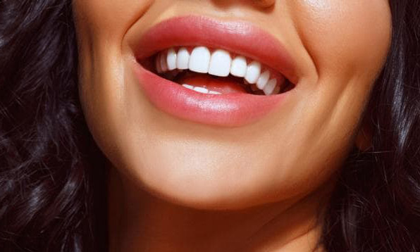 How to get an event ready smile, according to an orthodontist