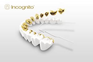 lingual braces