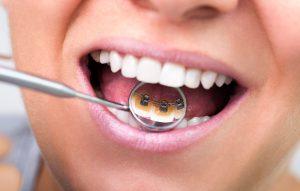 lingual braces blog
