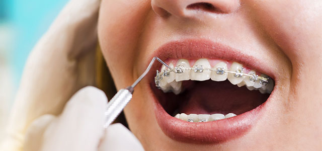 orthodontic emergencies