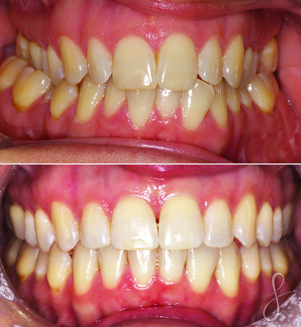 Invisalign and expansion before and after