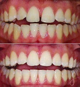 Maxillary Dentition SYO